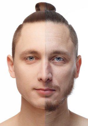Aging in man