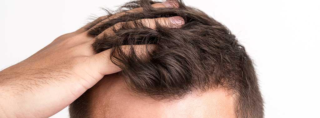 vegan hair loss header banner