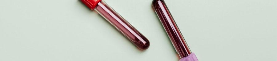 blood samples in a vial